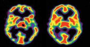 flere veck i hjärnan